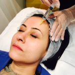Mesotherapy with needle