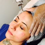 mesotherapy with mesogun