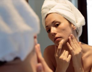 acne scarring blog pictue