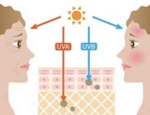 The effects of UV-rays on ageing and burning