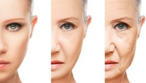 The V shape distortion with the ageing process.