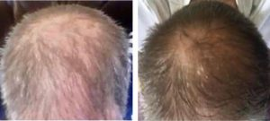 Noticible results with this patient after five treatment