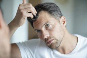 Non Surgical hair loss treatments