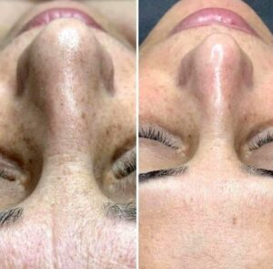 before and after the peel smooth skin