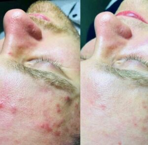 before and after the peel with acne